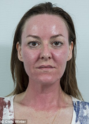 Karen Cross at the end of her glycolic peel
